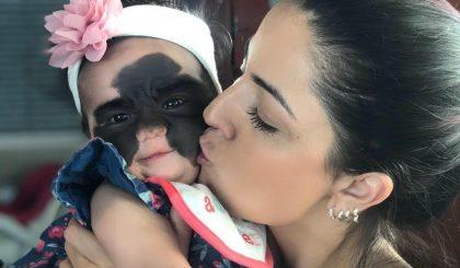 Bebê nasce na Flórida com mancha rara no rosto